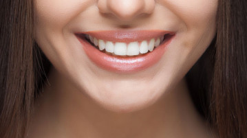 The Illegality Of Tooth Whitening